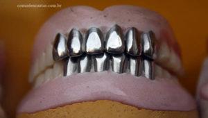 Como fazer descarte de dentadura